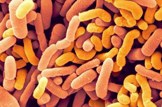 Bifidobacterium breve